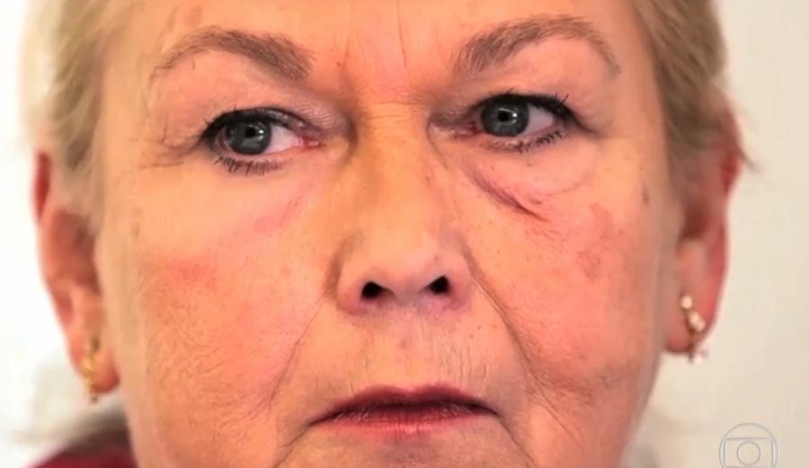 Cientistas aplicaram o produto do lado esquerdo do rosto da senhora (Foto: Divulgação)